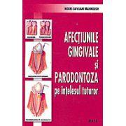 Afectiunile gingivale si parodontoza pe intelesul tuturor